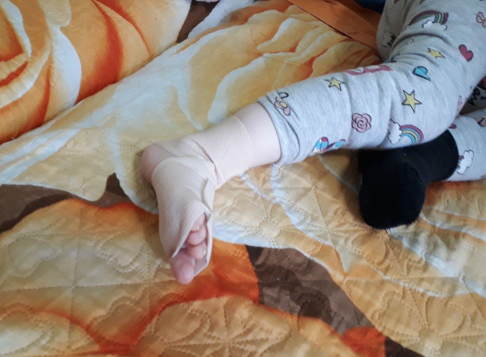 Девочке нужно бинтовать ноги и руки, чтобы избежать травмирования кожи