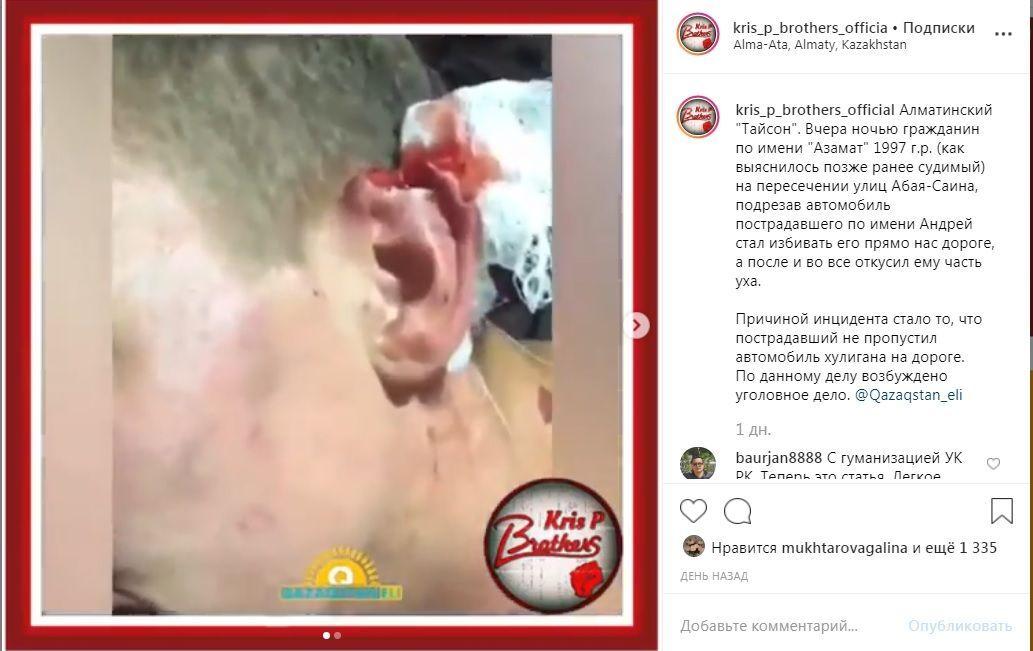 Возвращение Тайсона: алматинец откусил часть уха не пропустившего его водителя