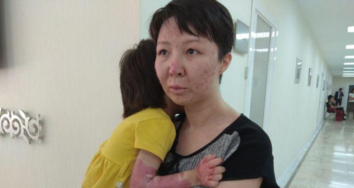 Жительница села Шидерты Павлодарской области Найляна Имашева вместе с ребенком, получившие сильные ожоги из-за взрыва газа из бытового баллона