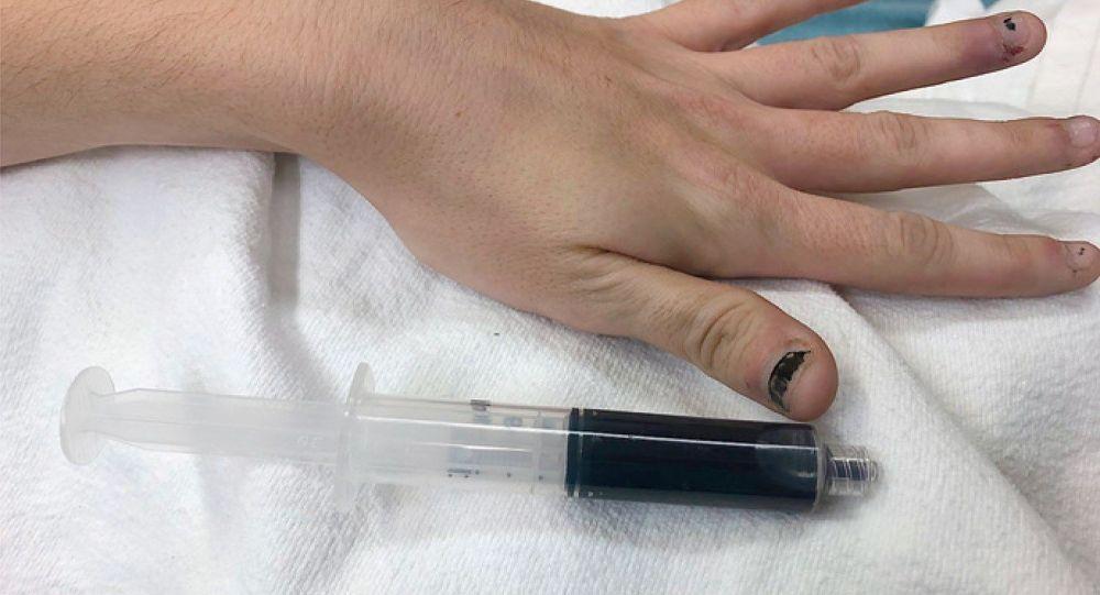 Кровь женщины окрасилась в голубой цвет после обезболивающего