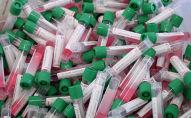 Пробирки с образцами для анализов на коронавирус