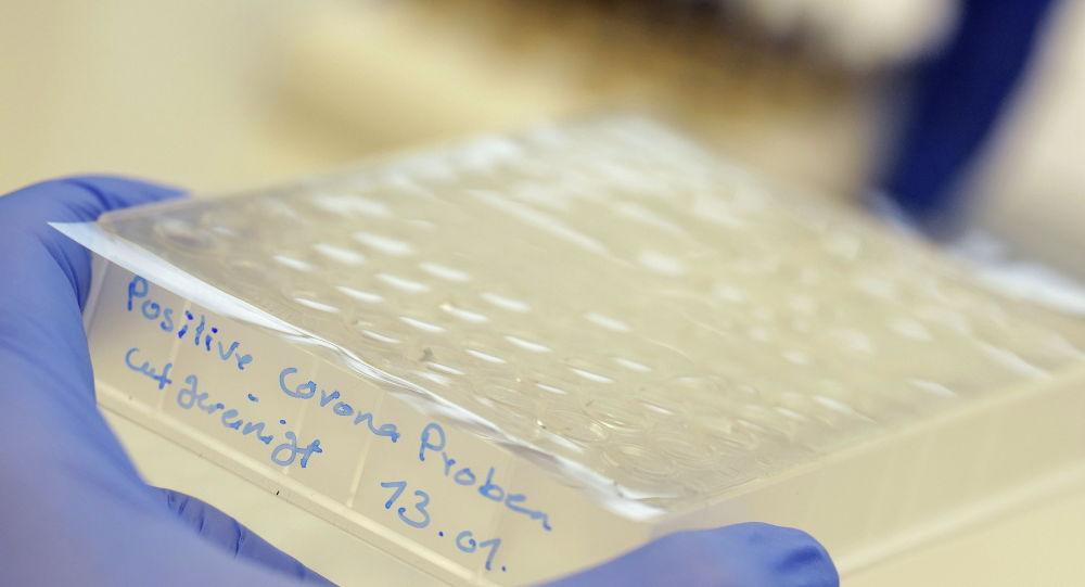 Сотрудник лаборатории держит в руках пробирки с положительными пробами на коронавирус