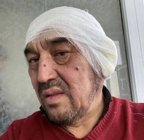 Карагандинец сильно обморозил уши во время бурана