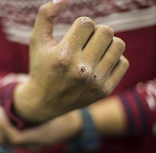 Архивное фото мужчины, показывающего кулак