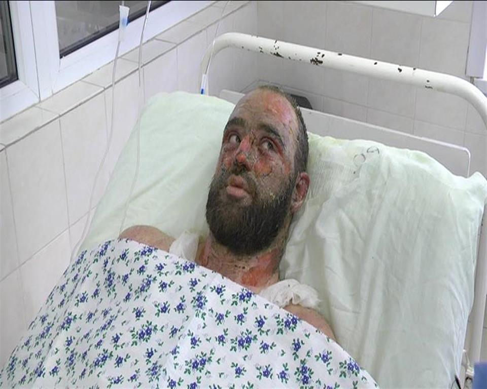 Слесарь, выживший при аварии в котельной в Рудном