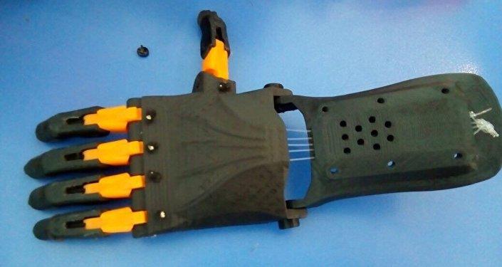 Заменить утраченные конечности помогают протезы, изготовленные на 3D принтере