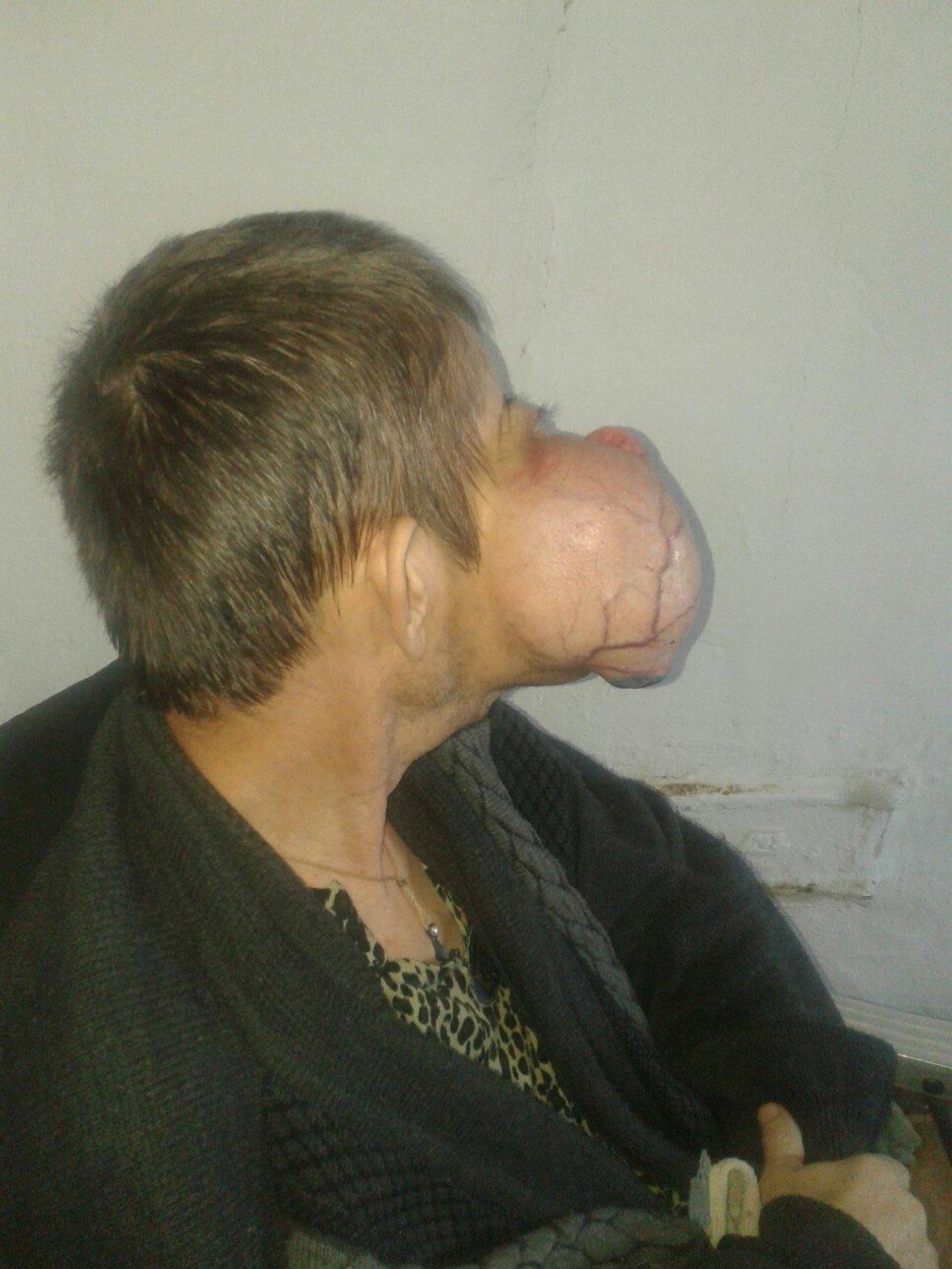 Мужчина с опухолью на лице