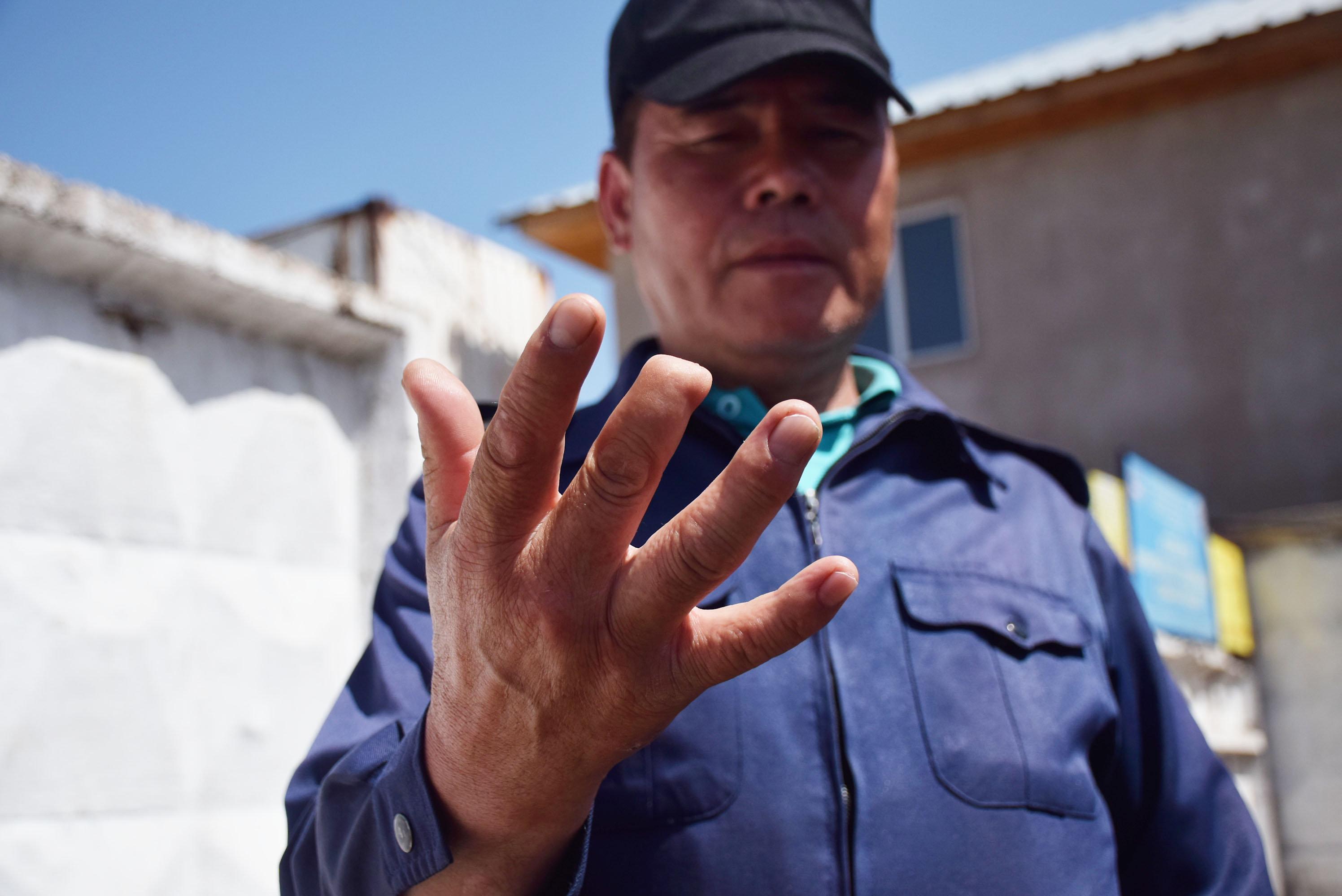 Сотрудник службы отлова бродячих животных показывает травмированный палец