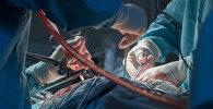 Операция, архивтегі фото