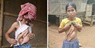 Паразит растет из груди девочки
