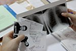 Флюорография. Архивное фото - рекадр